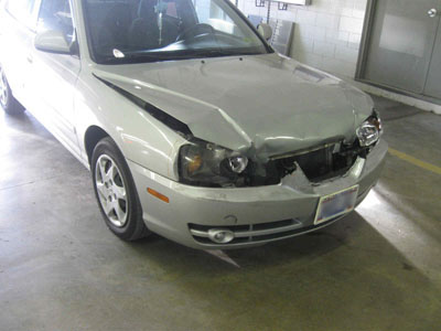 Hyundai Elantra Before Repair